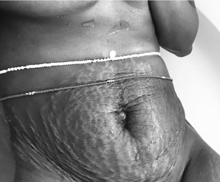 Doğum sonrası vücutlarını paylaşıyorlar! 'Ünlülerden ibaret değil'