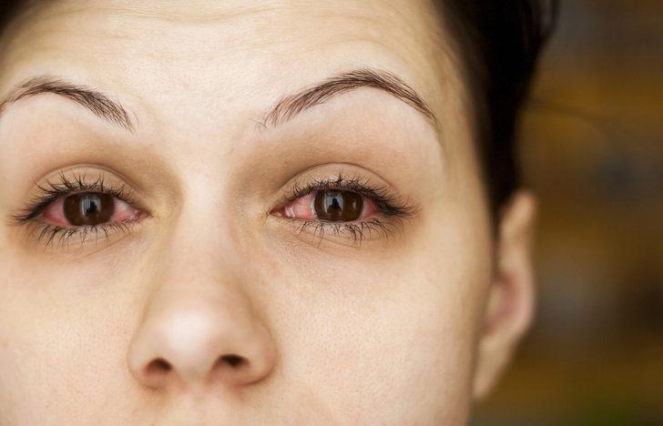 Kırmızı göz hastalığı, belirtileri ve tedavisi hakkında her şey