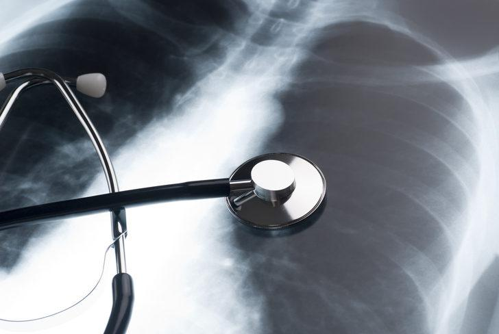Akciğer tansiyonu olan kişileri uyardı: Covid- 19 daha zorlu geçebilir