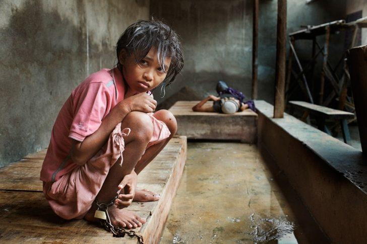 Endonezya'nın Ruh Hastalıkları Hastanesindeki Rahatsız Edici Yaşam Koşulları