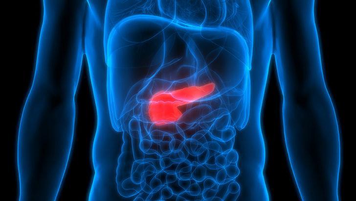 Pankreas kanseri tedavisinde cerrahi yöntem