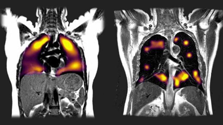 Covid-19: Yeni tarama tekniği, akciğerlerdeki hasarı 'gösterdi'