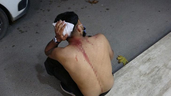 Başına çivili sopayla vurulan yaralıyı ambulansta linç etmeye çalıştılar