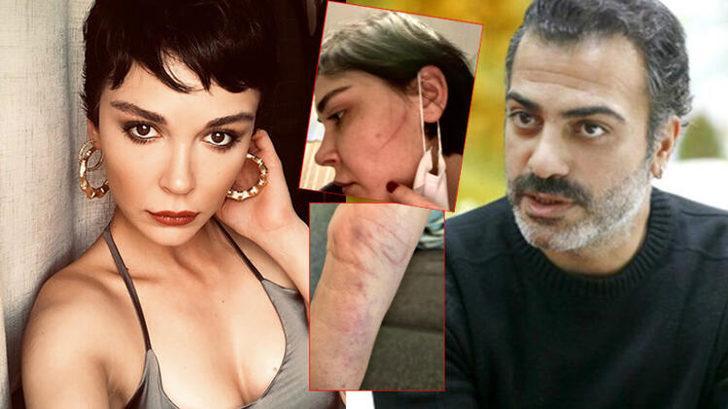 Sermiyan Midyat'ın darp ettiği iddia edilen Sevcan Yaşar'ın darp fotoğrafları dava dosyasına girdi
