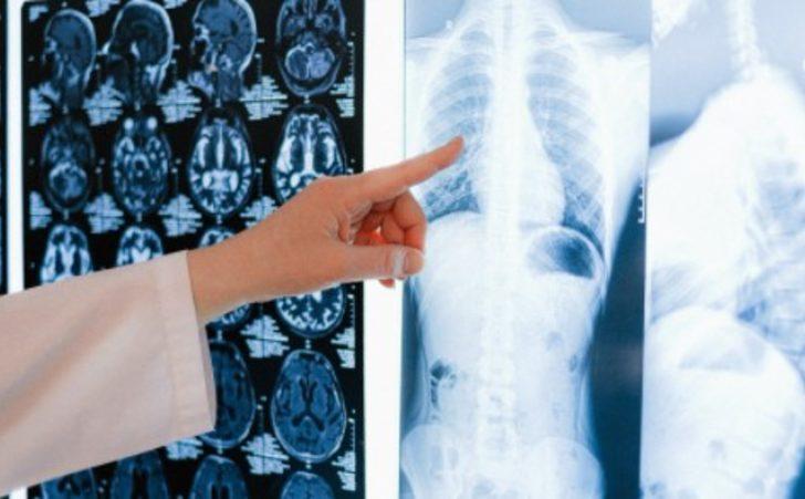 Akalazya hastalığı nasıl bir hastalıktır? Belirtileri nelerdir?