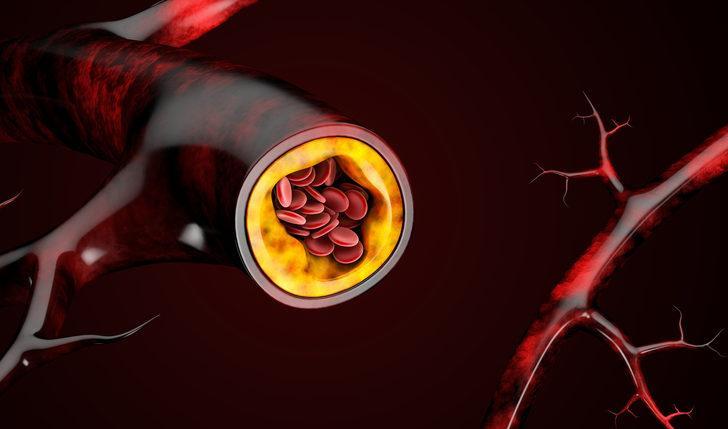 Vldl kolesterol nedir? Vldl kolesterol seviyesi kaç olmalı?