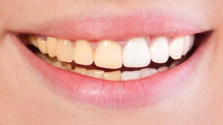 Dişlerinizi evde beyazlatmanızı sağlayacak 5 etkili yöntem