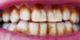 İçinde milyonlarca bakteri var! Diş taşı temizlenmezse...