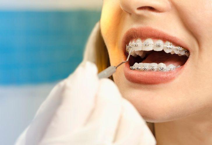 Diş teli tedavisinden sonra dişlerim eski haline döner mi?