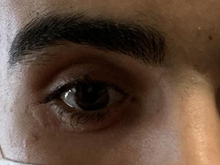 Ameliyatta unutulan cam kırığı yüzünden gözünü kaybetti