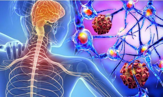 MS hastalığı nedir?