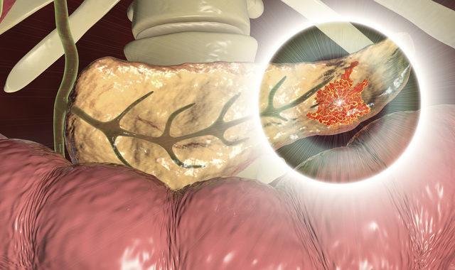 Pankreas iltihabı nedir?