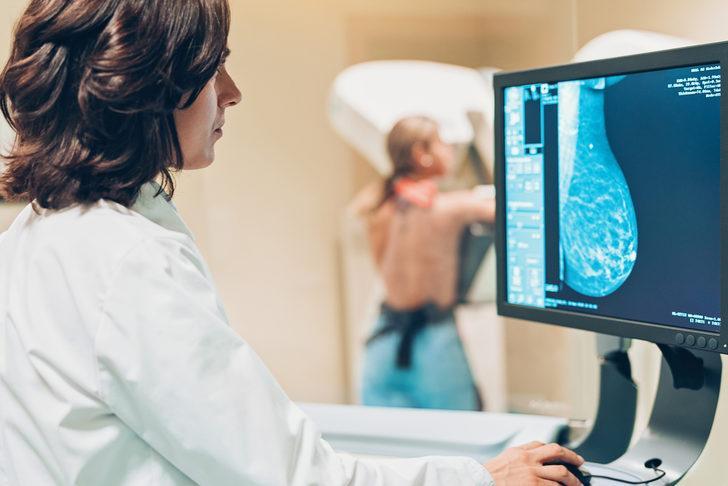 Mamografinizin sonucunun şüpheli olması ne anlama gelir?