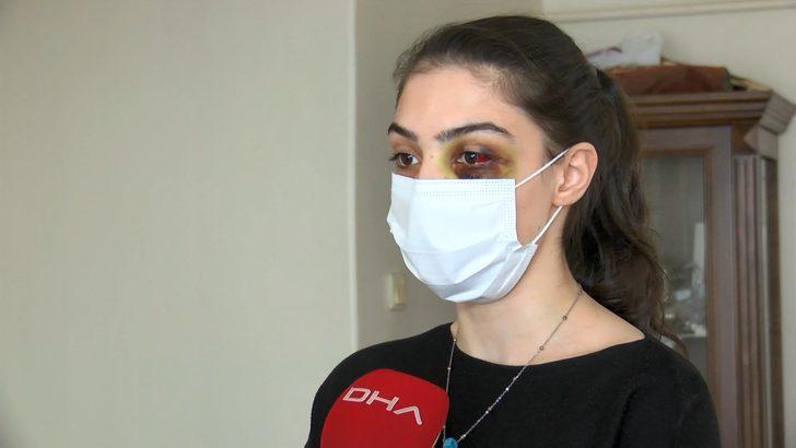 Telefonda video izlediği için kocasının feci şekilde dövdüğü kadın: Ölmeyi mi bekleyeyim?