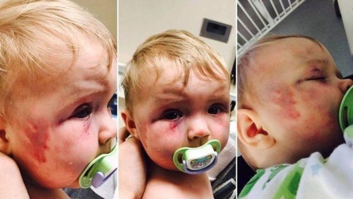 Sekiz aylık kızını öldüresiye dövdü! Ceza almadı