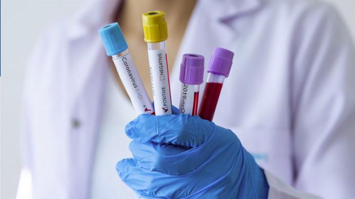 15 Nisan koronavirüs tablosu açıklandı! Vaka sayısı: 61.400'e ulaştı