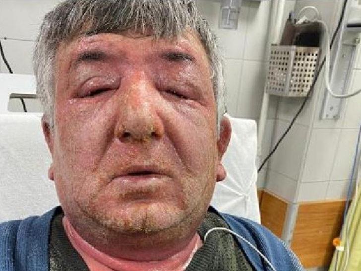 Taksisine aldığı müşteriden şüphelendi! Eline yüzüne sürdüğü dezenfektan  hastanelik etti - Son Dakika Haberler