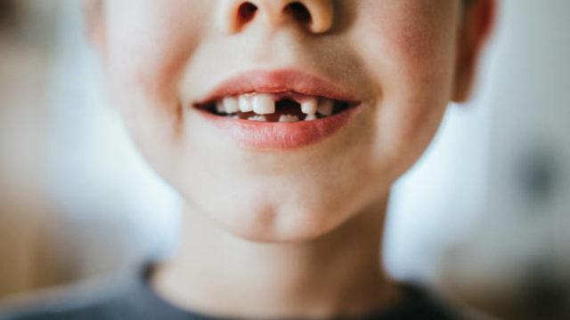 Geç müdahale diş kaybına yol açıyor