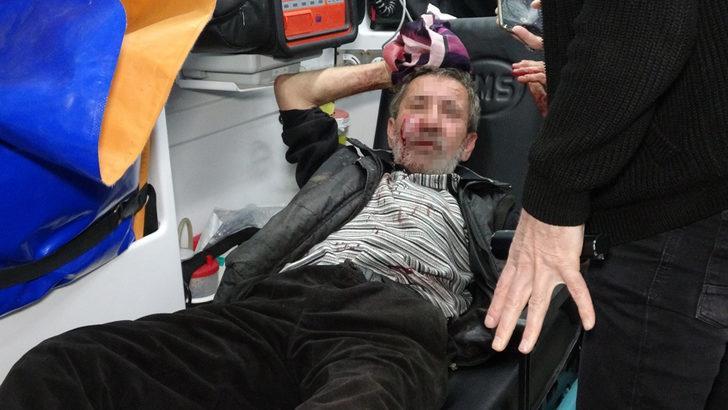 Bursa'da akılalmaz olay! Engelli kardeşini bıçaklayıp başında sigara içti