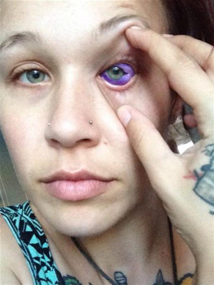 Dövme sildirmek isterken hayatının şokunu yaşadı 7