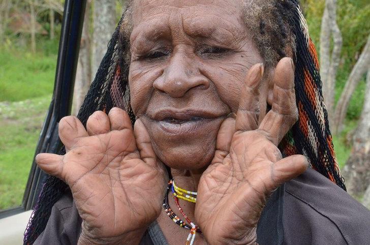 Böyle korkunç gelenek görülmedi! Yas için parmaklarını kesen ilginç kabile: Dani kabilesi