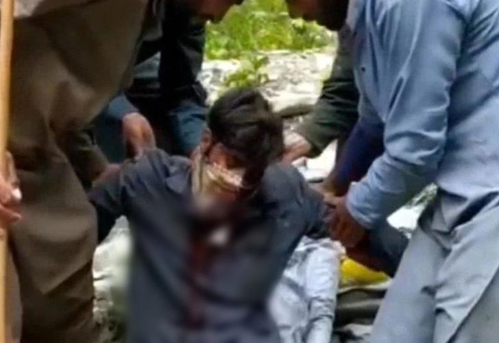 Hindistan'da ayı saldırısına uğradı, dehşeti yaşadı: Gözümün olmadığını hastanede öğrendim