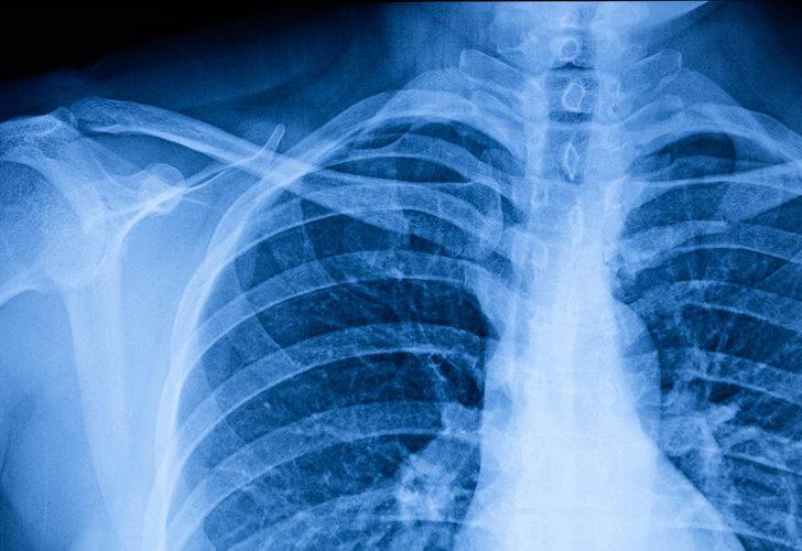 Göğüs duvarı bozukluğu nedir? Kesin tedavisi var mı?