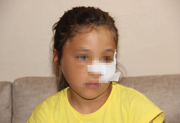 Küçük kız dehşeti yaşadı! Kuzeninin fırlattığı demir boru yüzünü yaraladı