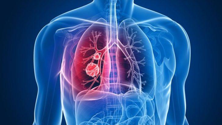 Akciğer Kanseri Neden Geç Anlaşılıyor Sağlık Haberleri
