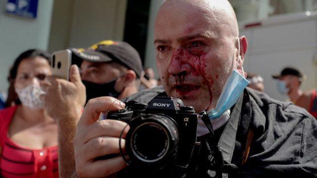 """AP haber ajansı için çalışan fotomuhabiri Ramón Espinosa olaylarda yaralandı. ></noscript>""""/></p> <p><img class="""