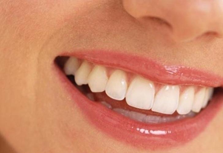Gülüş tasarımı nedir? Mükemmel gülüş planlaması nasıl yapılır?