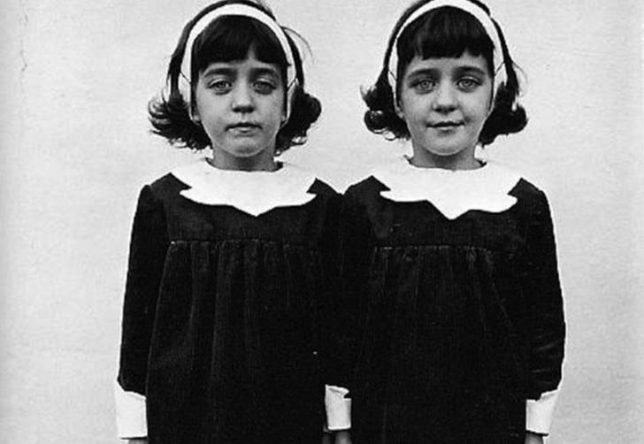 Reenkarnasyona inanmayanları bile ürkütecek! Pollock ikizleri yaşadıklarıyla tarihe damga vurdu