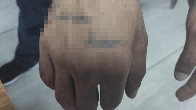Elindeki dövmeyle yakayı ele verdi