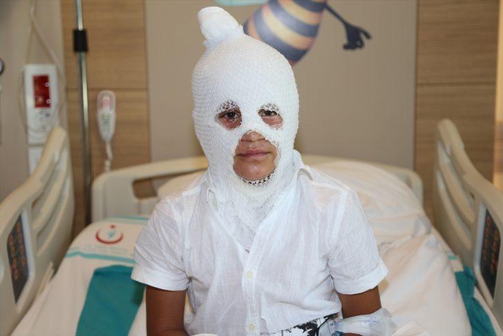 Arkadaşının yaktığı kolonyayı söndürürken yanan çocuk Erzurum'da tedaviye alındı