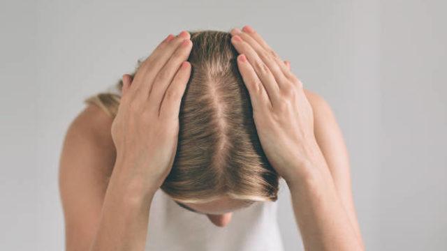 Basit bir saç dökülmesi mi, kellik mi?