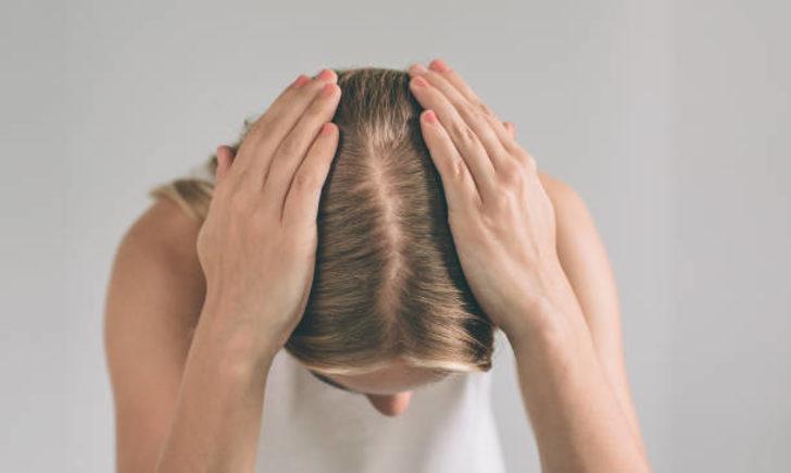 Kadınlarda kellik oranı her yıl katlanıyor! Basit bir saç dökülmesi mi, kellik mi?