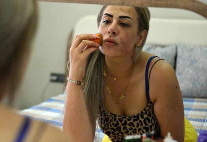 Güzellik merkezinde yaptırdığı peeling yüzünü yaktı! Genç kadın kabusu yaşadı