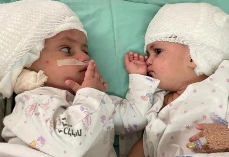 İsrail'de dünyaya gelen yapışık ikizler ameliyatla ayrıldı! Birbirlerine ilk kez baktılar