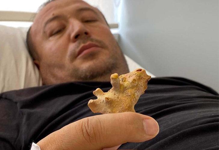 """""""Böbreğinde taşla yaşayacaksın"""" denilen Özbek hasta, şifayı Türkiye'de buldu"""