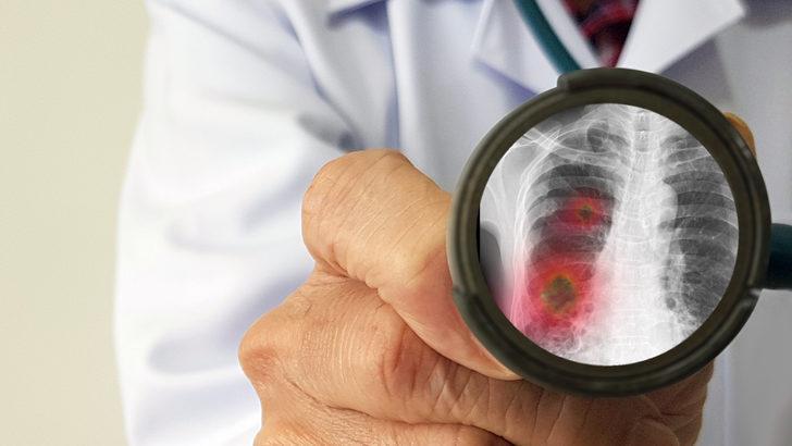 Zatürree hastalığına dikkat