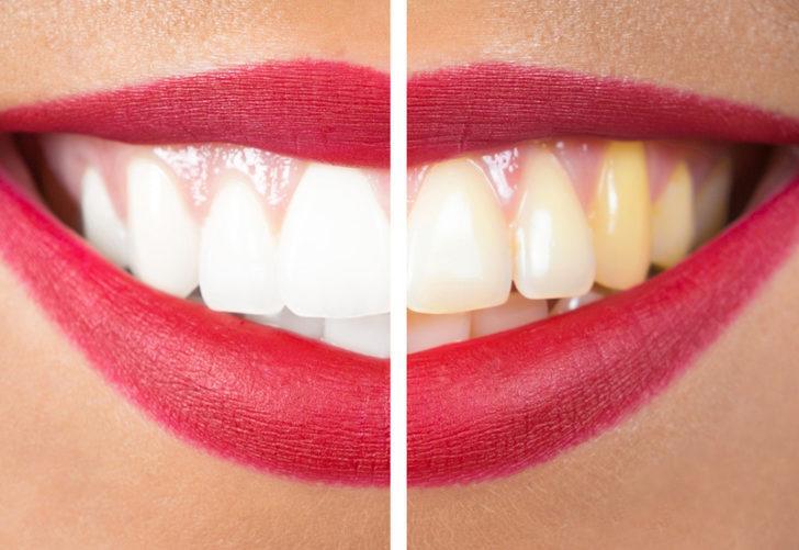 Hayalini kurduğunuz bembeyaz dişlere sahip olmak çok kolay! Muz, portakal…