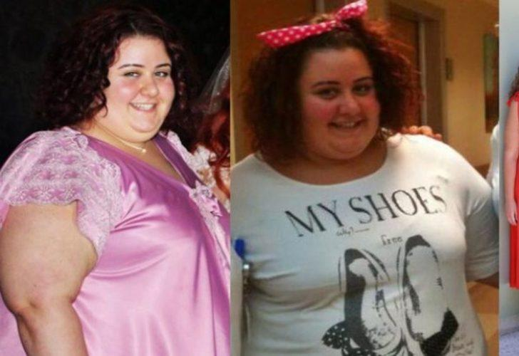 Değişimi inanılmaz! Ünlü isim 105 kilo birden verdi: İşte obezite ameliyatıyla zayıflayan ünlüler!