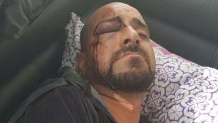 Belçika'da ırkçı saldırı! 'Erdoğan'ı seviyor musun' diye sorup darp ettiler