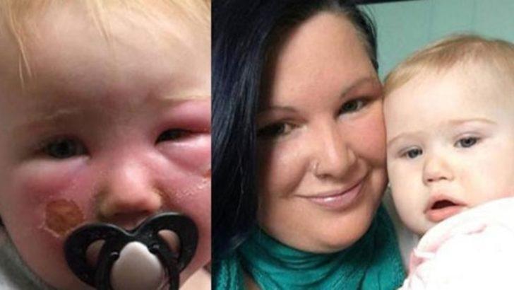 14 aylık bebek güneş kremi yüzünden tanınmaz hale geldi