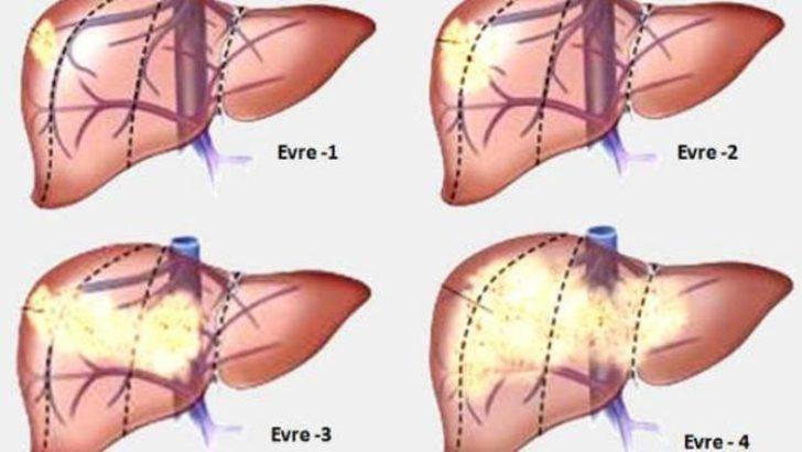 Karaciğer Kanserlerinde takip önemli