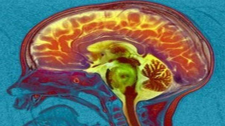 Beyin taramasıyla disleksiye erken teşhis