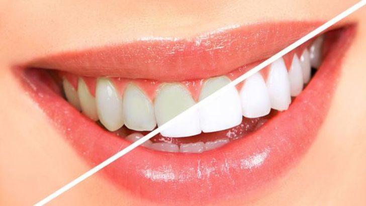 Diş beyazlatma ürünlerine dikkat