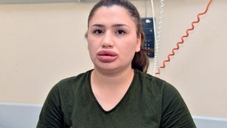 Sağlık Bakanlığı, 'dudak dolgusu' skandalıyla ilgili açıklama yaptı
