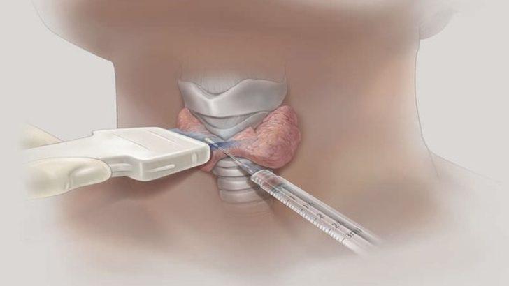 Tiroid nodüllerinde iğne biyopsisi