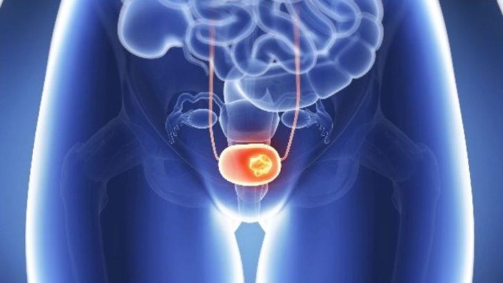 Mesane kanseri hakkında neler biliyorsunuz?